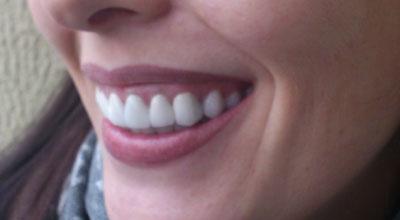 Фото зубов после отбеливания содой