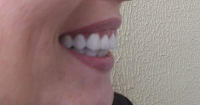 Как сделать чтобы зубы были белые фото 651