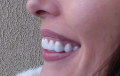 Как сделать чтобы зубы были белые фото 712