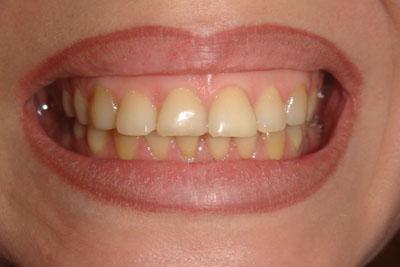 Полоски для отбеливания зубов в аптеке цена