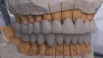 как сделать белые зубы стоматология